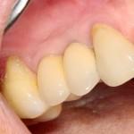 Через 1,5 года после протезирование. Восстановлены не только зубы, но и весь объем окружающих мягких тканей