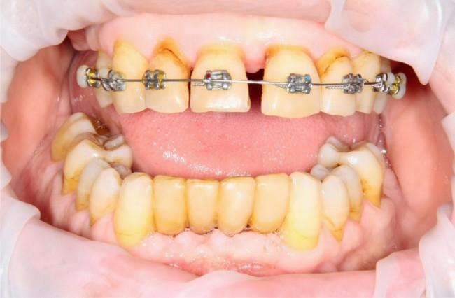 Почти начало лечения. Месяц назад удалены нижние резцы, начато ортодонтическое лечение