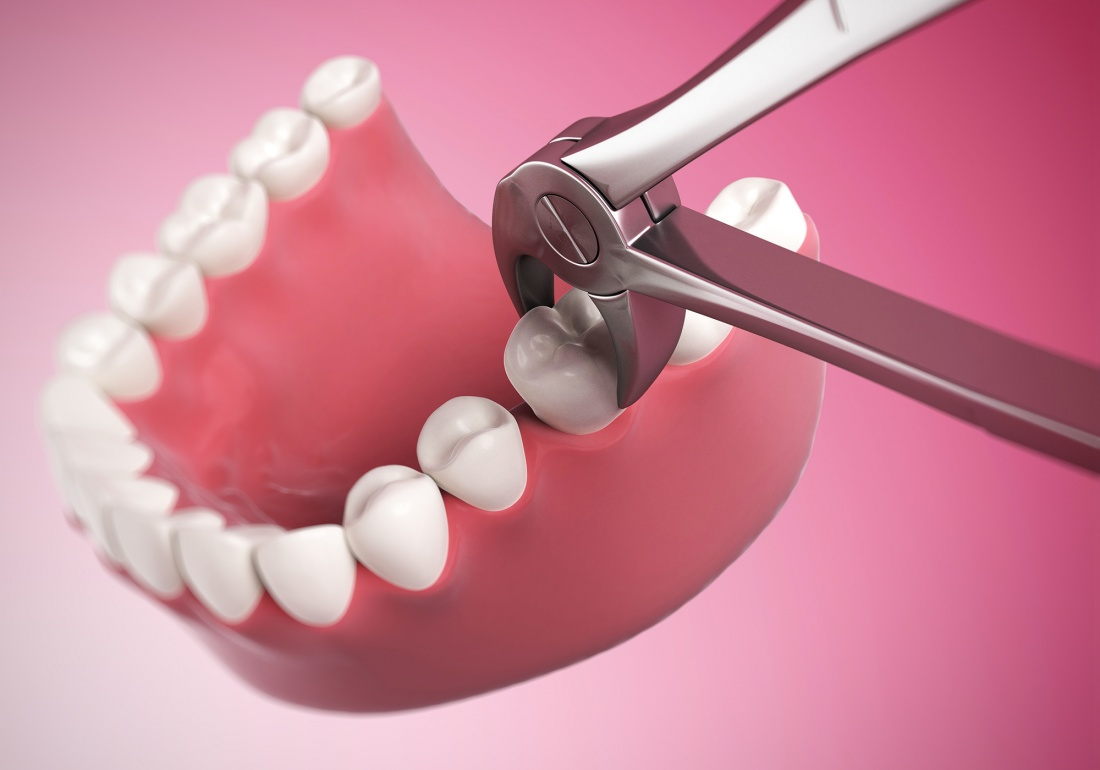 tooth-extraction-quiz-535641529[1]