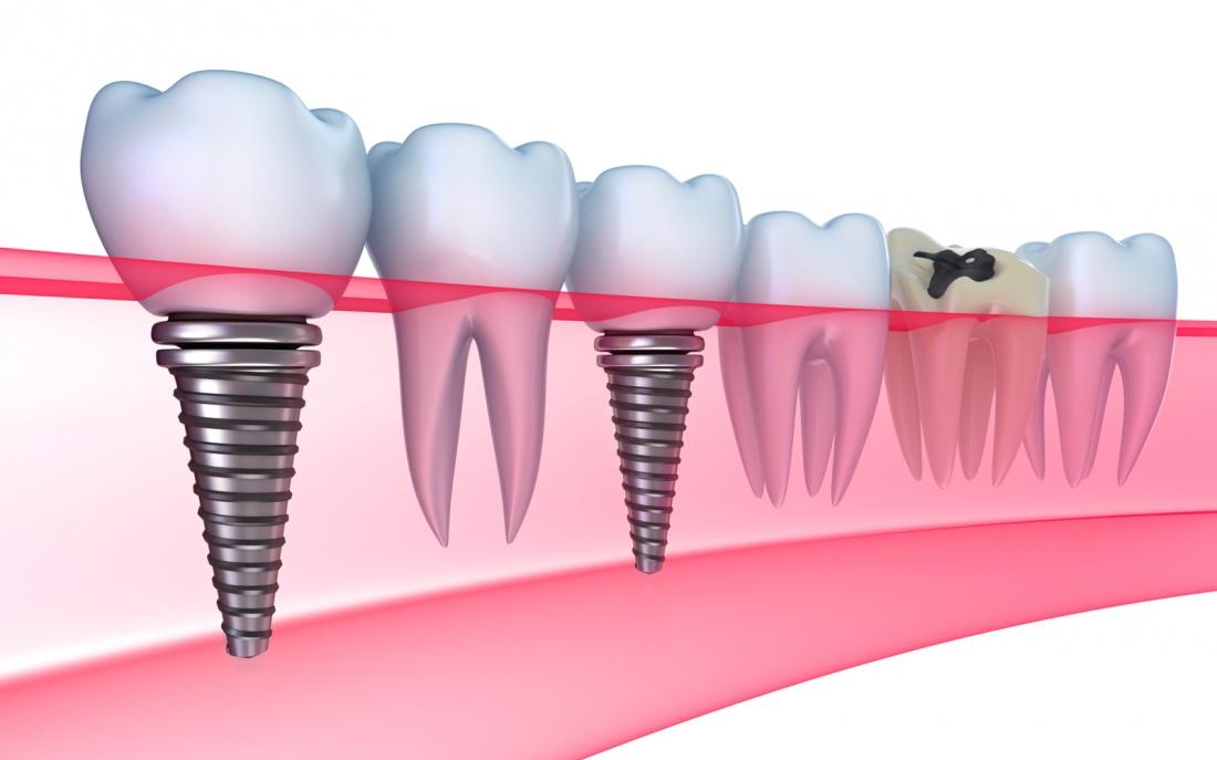 восстановление-зубов-53