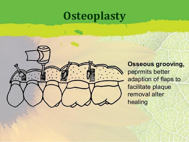 periodontal-flap-surgery-38-638[1]