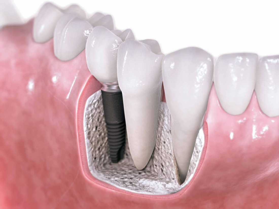 dental-implants-my-scottsdale-dentist2[1]