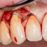 немедленная имплантация: удаление поврежденного клыка