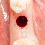 круговой разрез мукотомом и подготовка лунки под имплантат