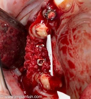 направленная тканевая регенерация требует использования биоматериалов и барьерных мембран, что отражается на ее стоимости