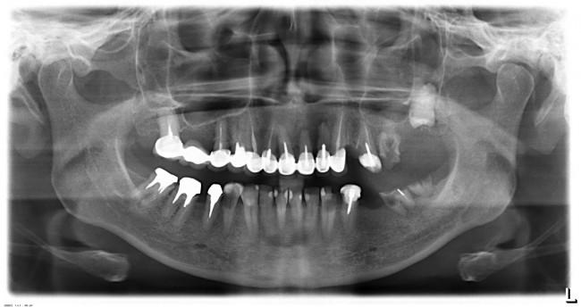 изначальная клиническая ситуация. Требуется имплантация во всех боковых участках зубного ряда