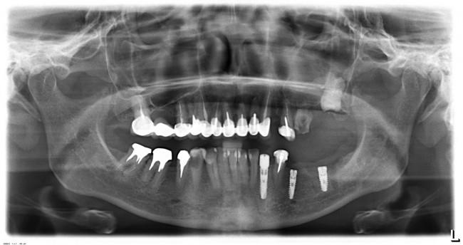 Первый этап лечения - установлены три импланта в левом нижнем сегменте зубного ряда.