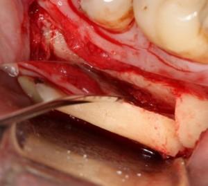 оптимальный способ забора аутокостного графта - ультразвуковая пьезохирургическая система.