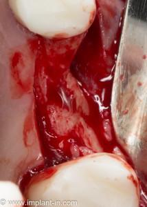Изначальная клиническая ситуация: существенная утрата объема альвеолярного гребня. Необходимы остеопластика и синуслифтинг