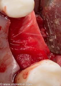 барьерная мембрана необходима для изоляции медленно регенерирующей костной ткани от быстрорастущей слизистой оболочки