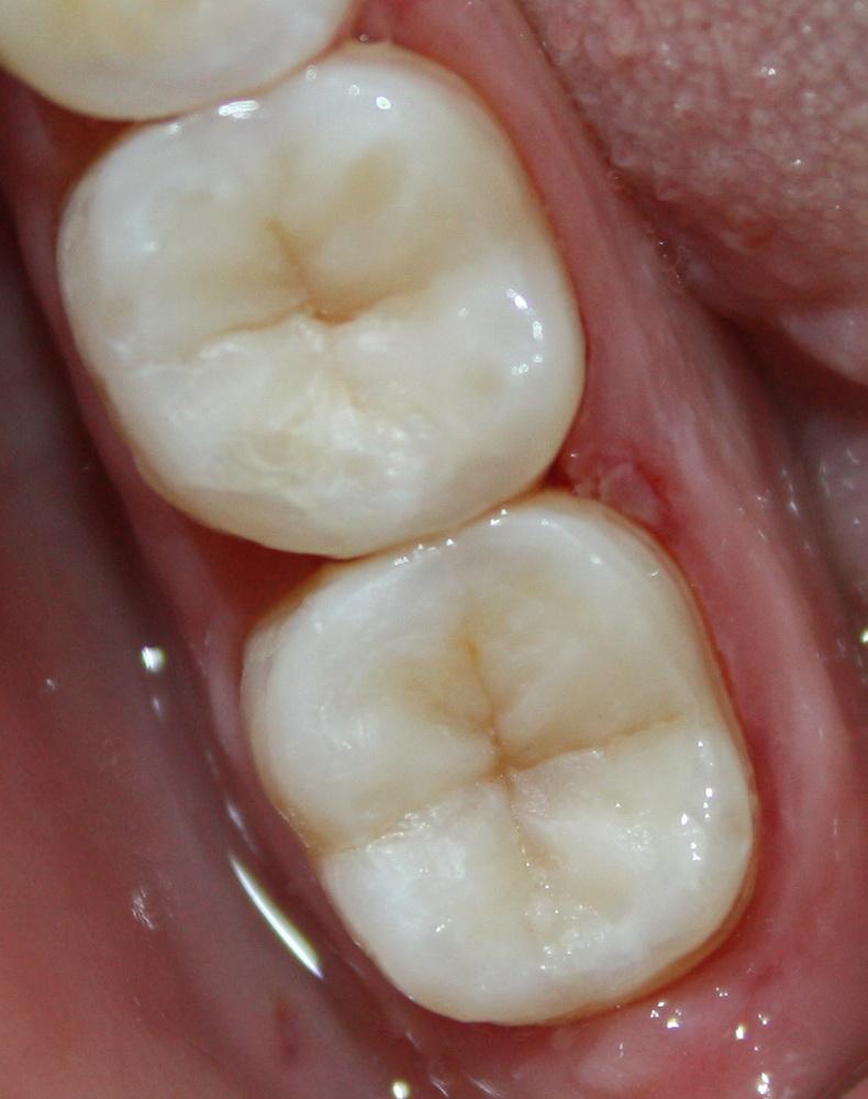 зуб шестерка на картинке они отличаются