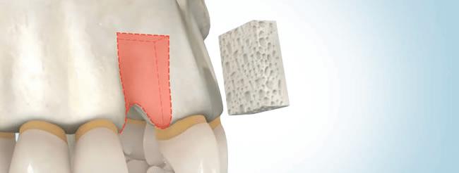 osteoplastie-3-