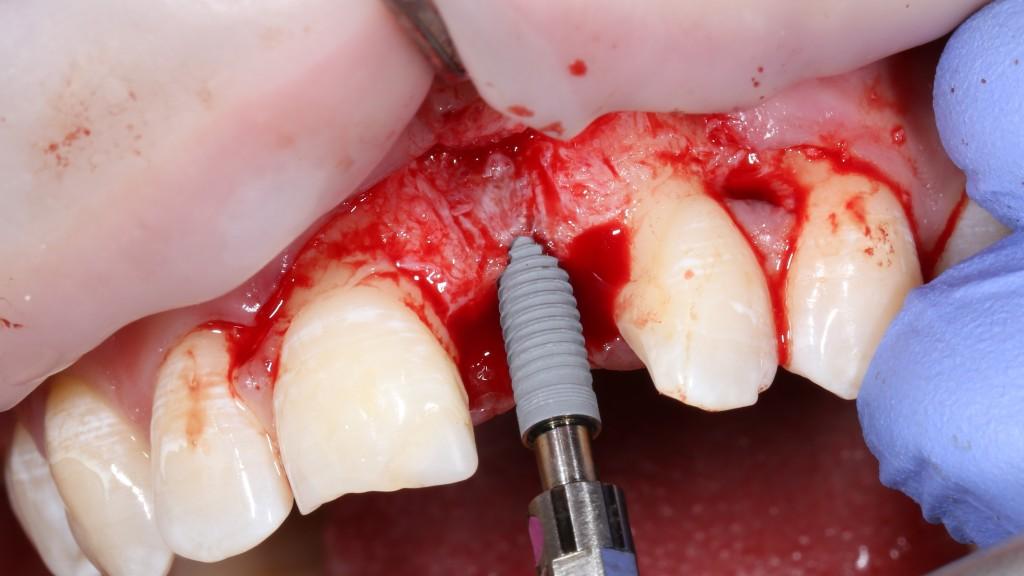 Когда можно установить зубной имплантант